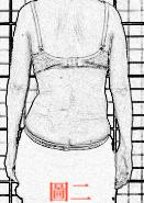 脊椎側彎, 脊椎側彎矯正, 脊椎側彎治療, 脊椎側彎手術