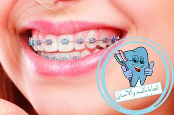 مدة تقويم الاسنان المعوجة