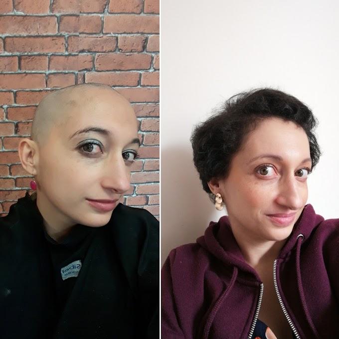 Un an après.... Après avoir rasé mes cheveux