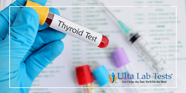 Where Can I Order An At Home Thyroid Test By Barbies Beauty Bits