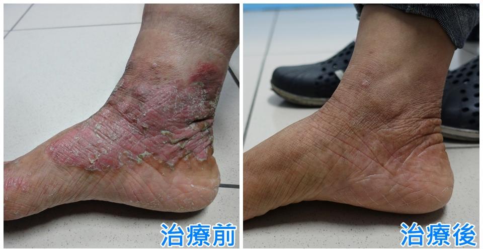 玉衡中醫廖浩欽醫師治療乾癬異位性皮膚炎濕疹魚鱗癬的臨床感想: 掌蹠型乾癬。沒在怕的啦!