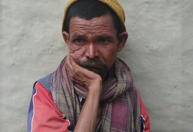 blindness in nepal