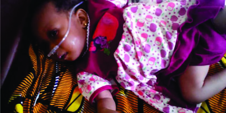 Save Life: 5-Month-Old Needs N3m For Heart Surgery