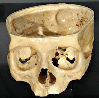 Crânio Feminino (Museu de Ciência e Tecnologia da PUCRS)