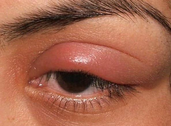 Swollen Eyelid Remedy