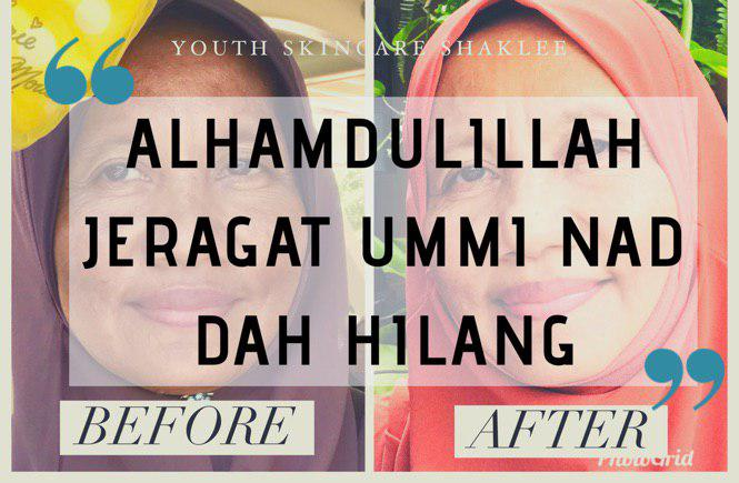 testimoni youth intensive treatment and repair set shaklee hilangkan jeragat