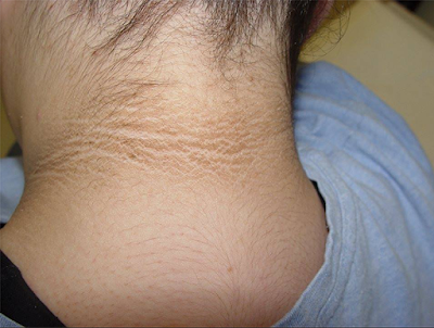 dark patches behind neck insulin PCOS