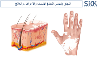 البهاق (تلاشي الجلد) الأسباب والأعراض والعلاج