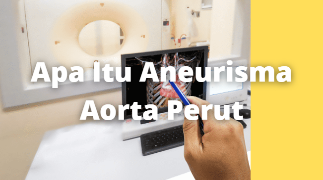 Apa Itu Aneurisma Aorta Perut : Pengertian, Tanda dan Gejala, Penyebab, Faktor Risiko Pengertian Aneurisma Aorta Aneurisma aorta perut adalah penonjolan aorta, pembuluh darah utama yang membawa darah dari jantung ke organ dan jaringan di bagian bawah tubuh.   Aorta adalah arteri terbesar dalam tubuh. Peregangan atau menggembungnya aorta berbahaya karena dapat merusak daerah pada dinding aorta sehingga aorta pecah dan menyebabkan perdarahan jika tidak segera diobati.  Tanda dan Gejala Aneurisma Aorta Aneurisma aorta perut umumnnya lambat berkembang dan biasanya tanpa gejala. Namun, dalam beberapa kasus, ketika terinfeksi Anda biasanya akan merasakan rasa sakit di perut atau punggung.  Penyebab Aneurisma Aorta Meskipun penyebab pasti dari aneurisma aorta perut tidak diketahui, ada kombinasi dari faktor-faktor yang dapat berkontribusi terhadap penyebabnya. Beberapa faktor antara lain : Tekanan darah tinggi (hipertensi) Pengerasan arteri (atherosclerosis) – ini adalah faktor risiko utama Penggunaan tembakau. Merokok dapat menyebabkan aneurisma untuk berkembang lebih cepat dan meningkatkan risiko tekanan darah tinggi serta pengerasan pembuluh darah  Beberapa penyebab lain adalah : Infeksi pada aorta – ini jarang terjadi namun dapat menyebabkan aneurisma Gangguan jaringan ikat (sindrom Ehlers-Danlos)  Faktor Risiko Aneurisma Aorta Ada banyak faktor risiko untuk aneurisma aorta perut seperti : Orang-orang yang berusia 50-65 tahun Merokok atau minum alkohol Memiliki tekanan darah tinggi Memiliki aterosklerosis. Akumulasi lemak dan zat-zat lain yang dapat merusak pembuluh darah dapat meningkatkan risiko aneurisma aorta perut Memiliki kerabat yang terinfeksi oleh aneurisma aorta perut. Menurut penelitian, 25% pasien memiliki kerabat dengan penyakit aneurisma aorta Statistik menunjukkan bahwa pria cenderung memiliki aneurisma aorta perut 6 kali lebih banyak dari wanita   Nah itu dia bahasan dari apa itu penyakit Aneurisma Aorta. Melalui bahasan di atas bisa diketahui mengenai 