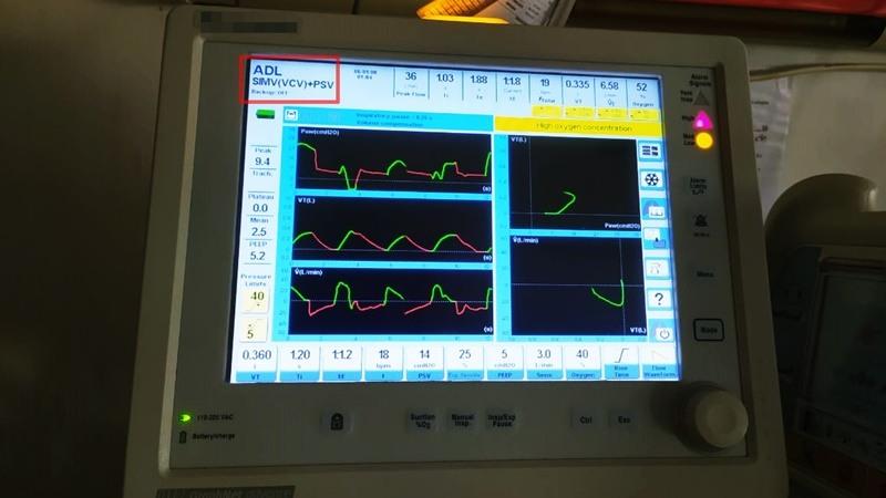 mode ventilator