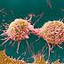 Rakamlar kanserin giderek yaygınlaştığını gösteriyor