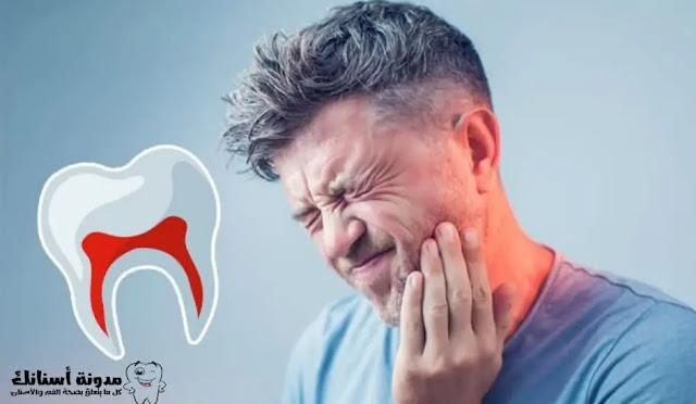 كيف تتخلص من ألم الاسنان؟ فيما يلي 10 اقتراحات فعالة ...