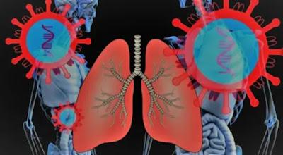 Cara-Cara Yang Terbukti Efektif Untuk Meredakan Nafas Di Rumah