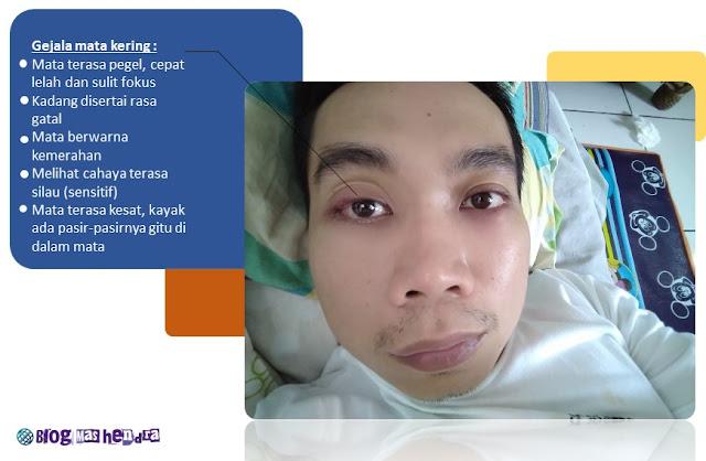 Pengalaman Saat Kena Sindrom Mata Kering - Blog Mas Hendra