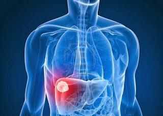 Penyebab dan Cara Mengobati Penyakit Liver