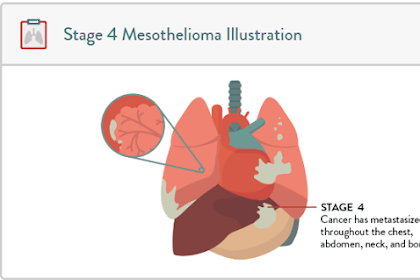 Stage 4 mesothelioma: The Last of This Deadly Cancer