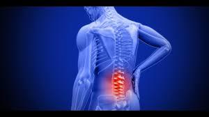 اسباب غضروف الظهر والاعراض والعلاج بوصفات طبيعية