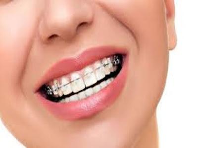 Gambar 4 Cara Merawat Gigi Yang Menggunakan Behel