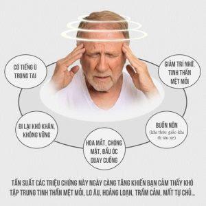 Một số triệu chứng của rối loạn tiền đình