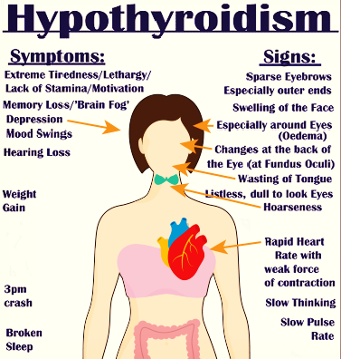 what is hypothyroidism What is hypothyroidism hypothyroidism, also called underactive thyroid, is when the thyroid gland doesn't make enough thyroid hormones to meet your body's needs the thyroid is a small, butterfly-shaped gland in the front of your neck.