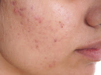 How To Treatment Acne Face