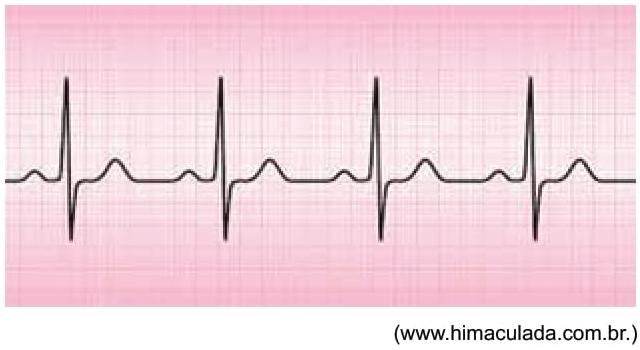 FAMERP 2021: A imagem mostra a onda obtida em um eletrocardiograma.