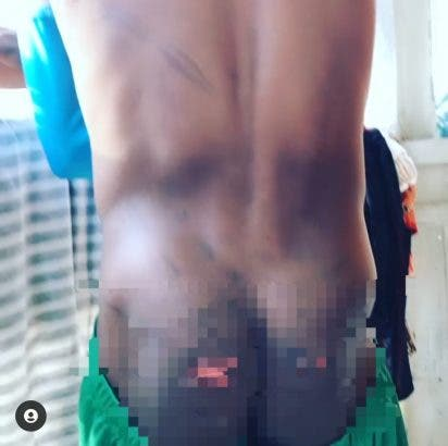 12 year old boy brutally flogged mercilessly by a teacher in the seminary school