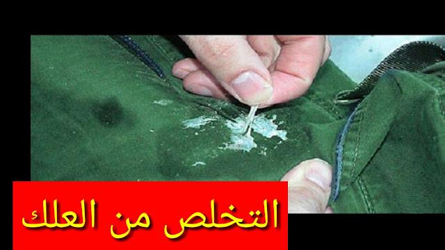 إزالة العلك من  الملابس او من الفراش