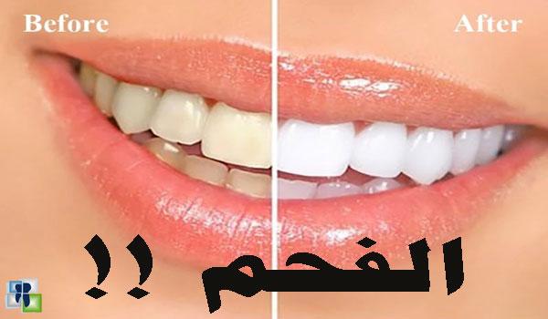 بودرة تبييض الأسنان ودور الفحم الفعال
