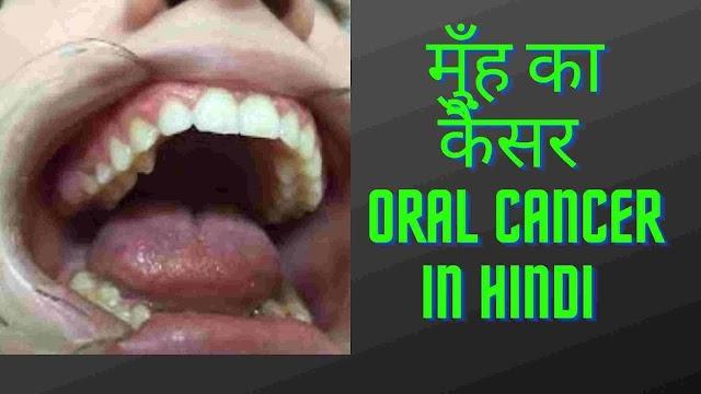 मुँह का कैंसर कैसे होता है - मुँह के कैंसर में क्या खाये