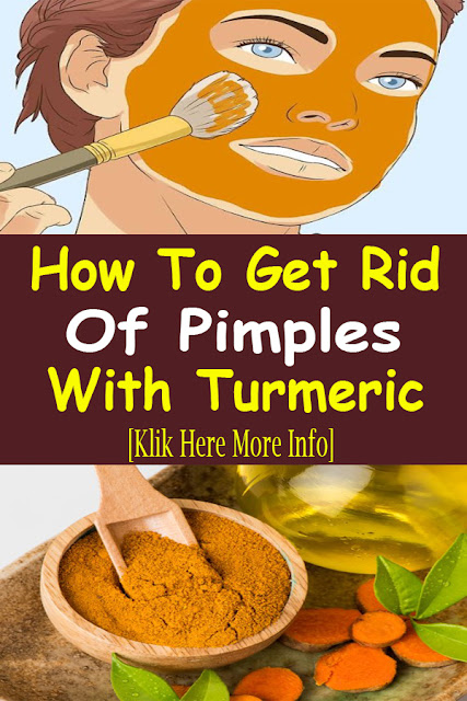 How To Get Rid Of Pimples With Turmeric