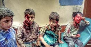 Akibat Pemberontakan oleh Syiah Houthi, 1 Anak Meninggal Setiap 10 Menit di Yaman
