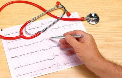 Cara Mengobati Penyakit Aritmia