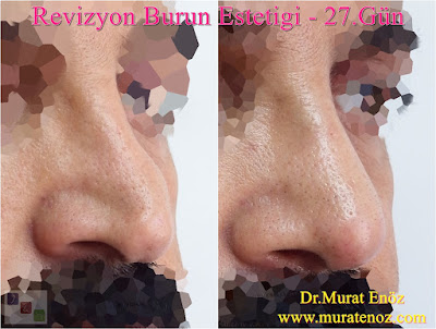 rhinoplasty cheapest prices, the best rhinoplasty surgeon in Istanbul, cost of rhinoplasty in Istanbul, cost of nose plastic surgery, cheap rhinoplasty, best surgeon for rhinoplasty Istanbul, nose lift price