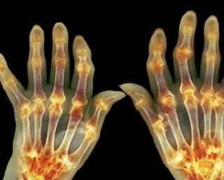 Ini Penyebab Artritis Serta Faktor Risiko Dan Gejalanya