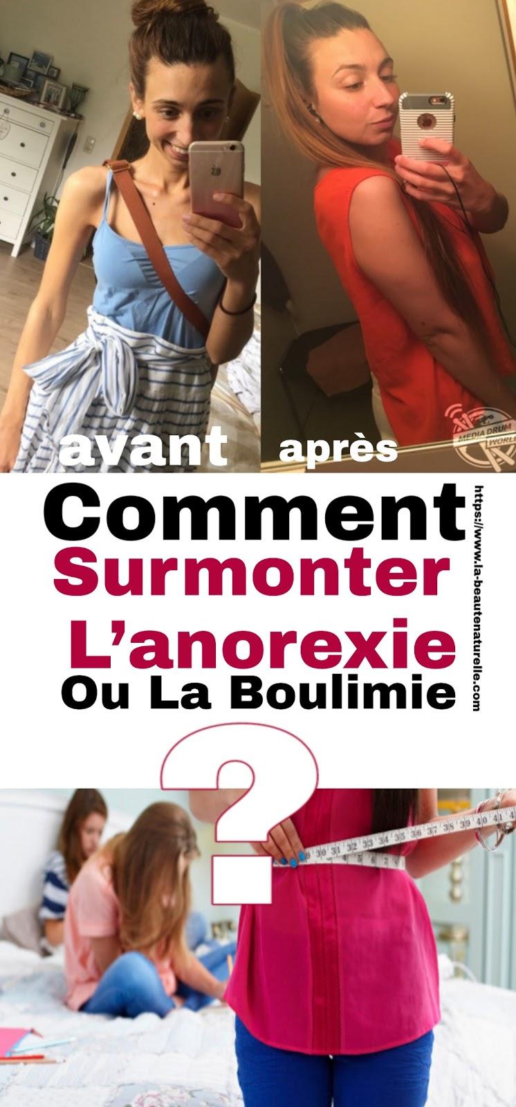 Comment Surmonter L'anorexie Ou La Boulimie ?