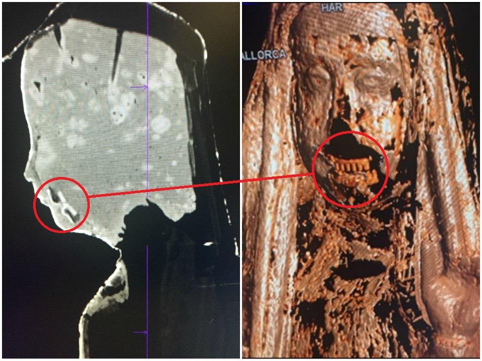 Parte inferior del rostro primitivo debajo del que presentaba previo a la restauración