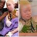 Na Tanzânia, os albinos são perseguidos como animais e têm seus membros amputados!