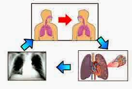 Symptoms, Prevention and Nursing Diagnosis for Tuberculosis