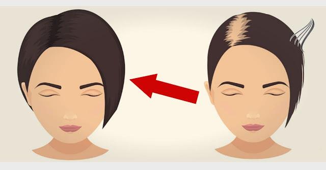 إليك 7 طرق لعلاج تساقط الشعر نهائي