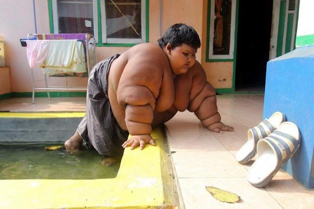 Tips Mencegah Obesitas Pada Balita
