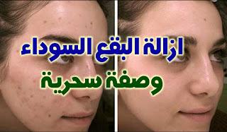 وصفة لازالة البقع من الوجه للدكتور سعيد حساسين
