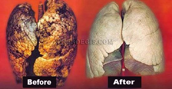 Proven powerful way to clean the lungs in just 3 days