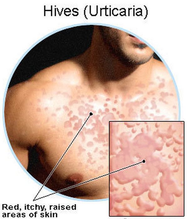 Lymphoma: Itching Lymphoma