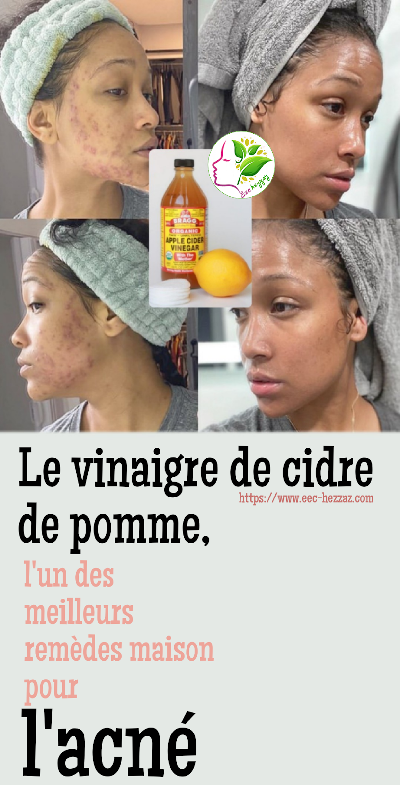 Le vinaigre de cidre de pomme, l'un des meilleurs remèdes maison pour l'acné