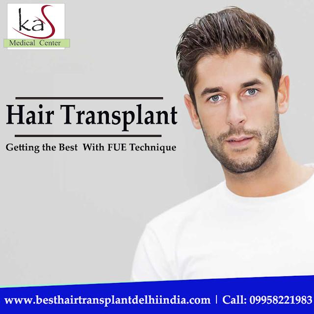 #HairLoss #HairTransplant  #HairSurgeon #HairCare #FUE #PRP #HairRepair #HairGrowth #HairRestoration #FUT #ClinicIndia #Delhi