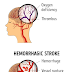 Understanding stroke | causes, diagnosis, symptoms and treatment