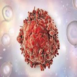 Combinação de drogas anuncia grande mudança no tratamento da leucemia linfocítica crônica