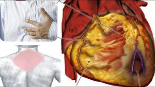 مرض الشريان التاجي.. اعراض ضيق وانسداد شرايين القلب والعلاج وكيفية الوقاية منها