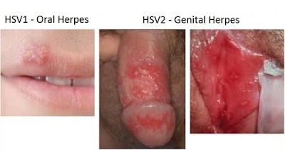http://penyakitinfeksimenularseksual.blogspot.com/2017/03/virus-herpes-spesifik-dapat-masuk-lewat.html